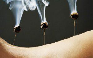 Moxa treatments